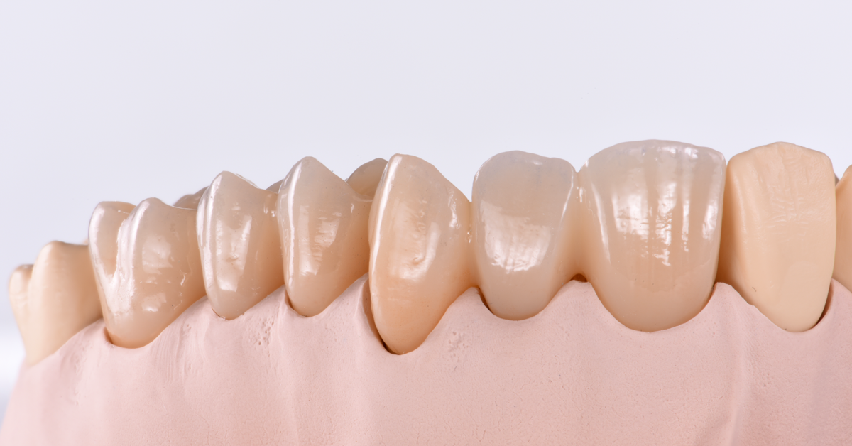 Things you should know about multi-zirconia restorations