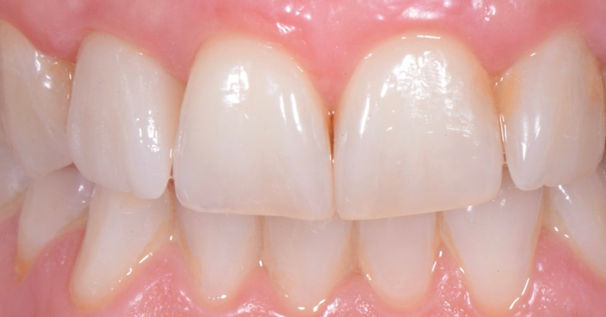 Make your patients smile - with direct anterior composite restorations