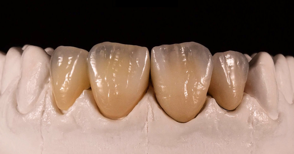 How to match and harmonize IPS Style and IPS e.max on the same patient