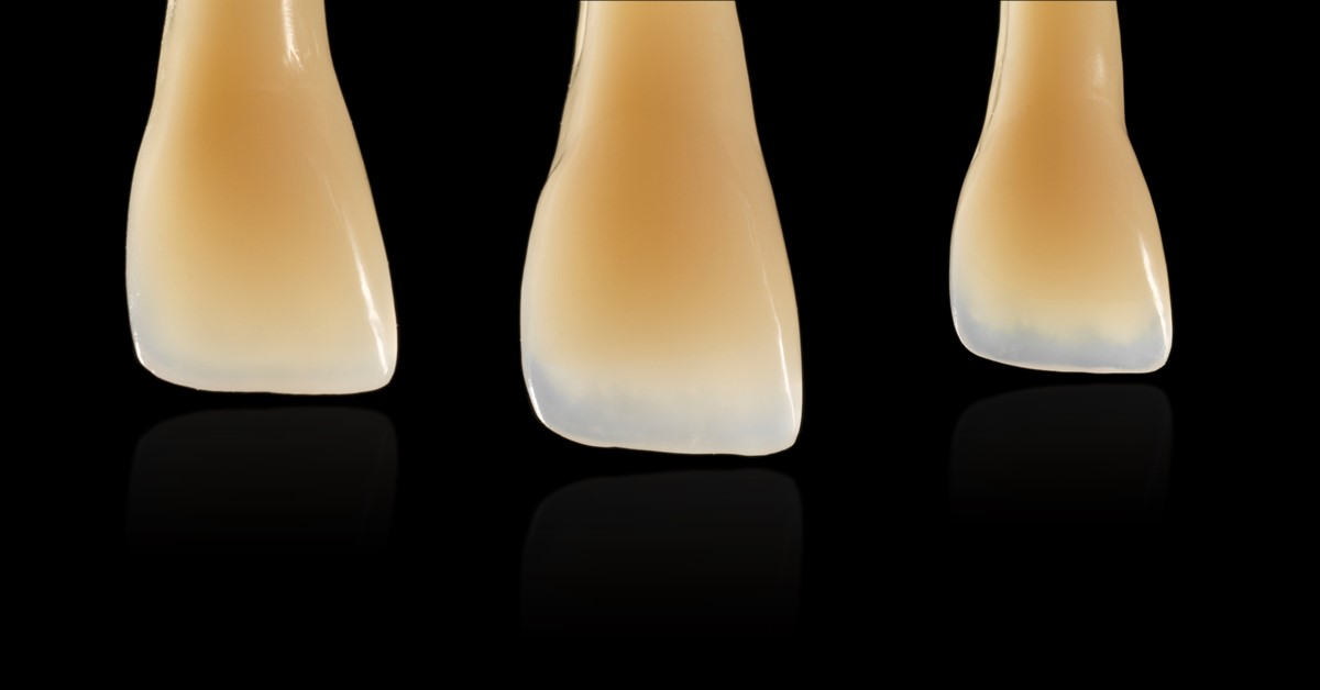 Bring your composite restorations to life with direct characterization