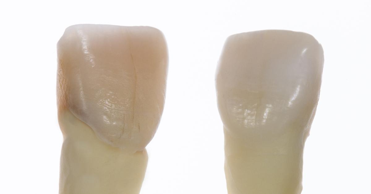 Morphology of Anterior Teeth (Module 1)