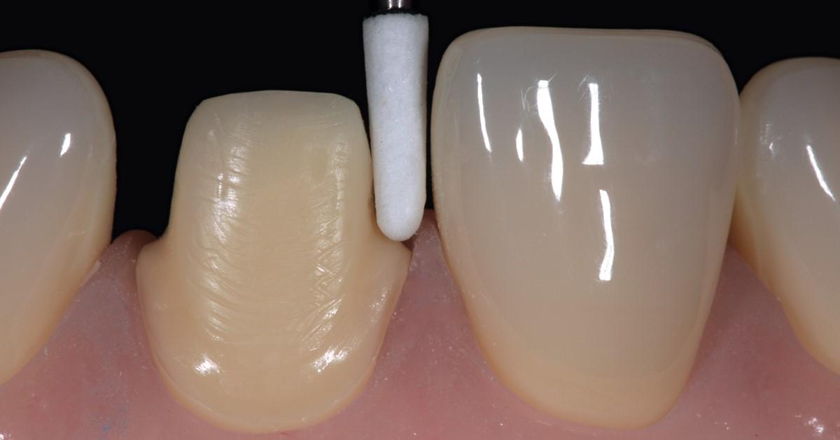 Chairside dentistry: esthetics & efficiency