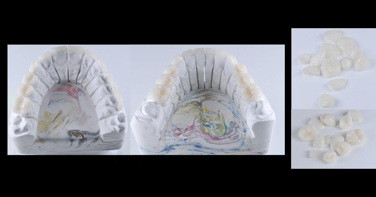 Procedimentos clínicos em reabilitação oral para atingir excelência clínica
