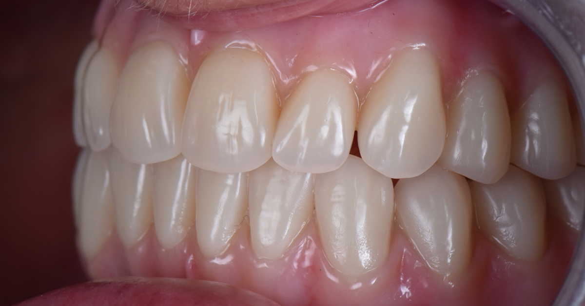 Digital Dentures - The future is now