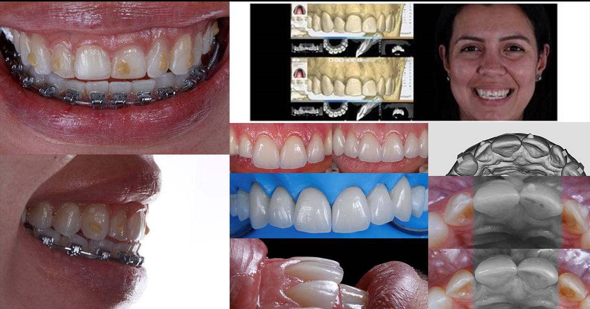 Limites e Possibilidades no uso de alinhadores prévios a reabilitação oral