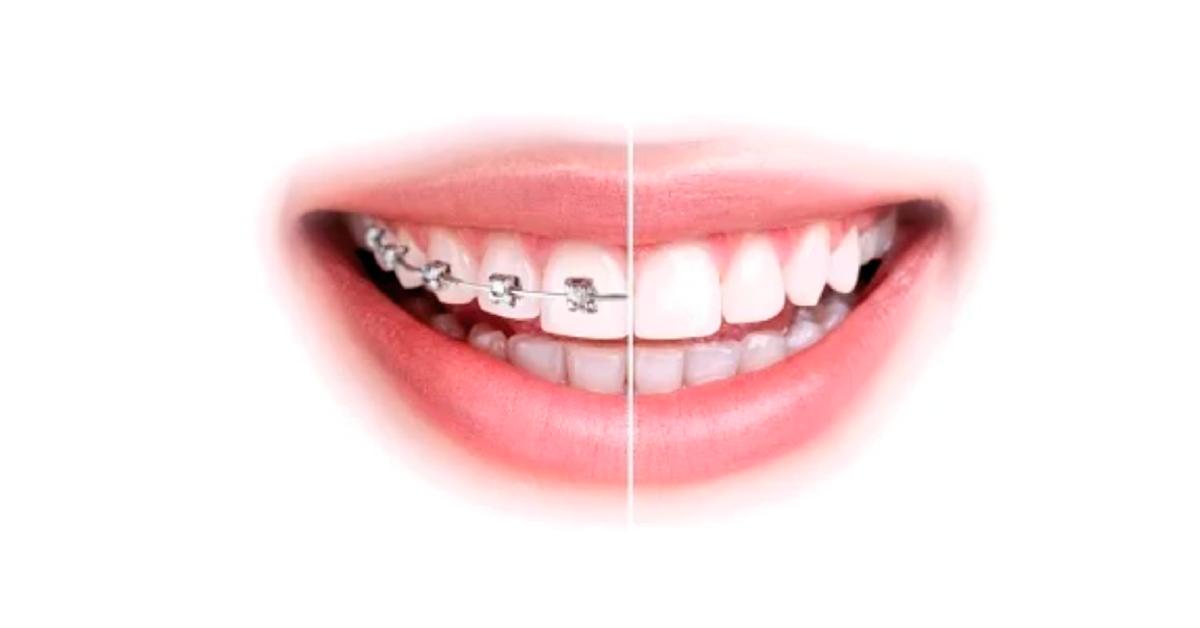 Adhesión en tratamientos de ortodoncia