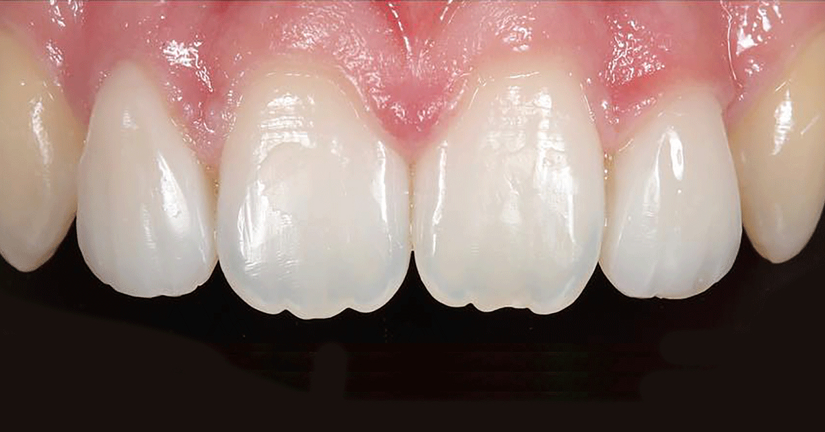 Innovative and effective ways of teeth whitening