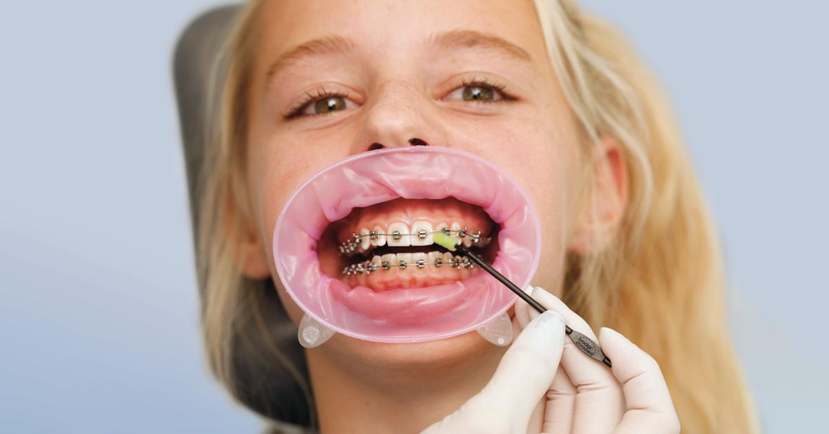 Índices estéticos en Odontología