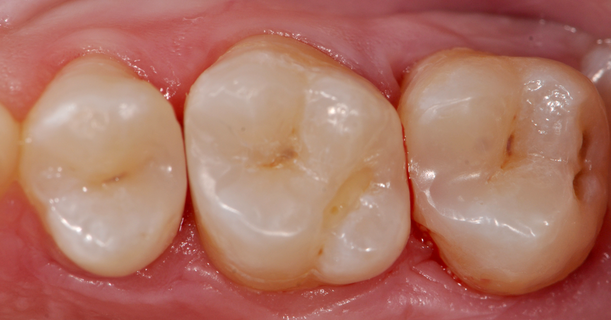 A Simple Approach to Direct Restoratives