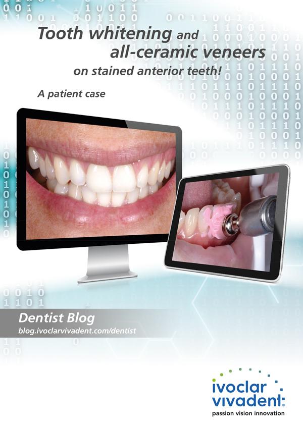 Bleaching teeth and veneers