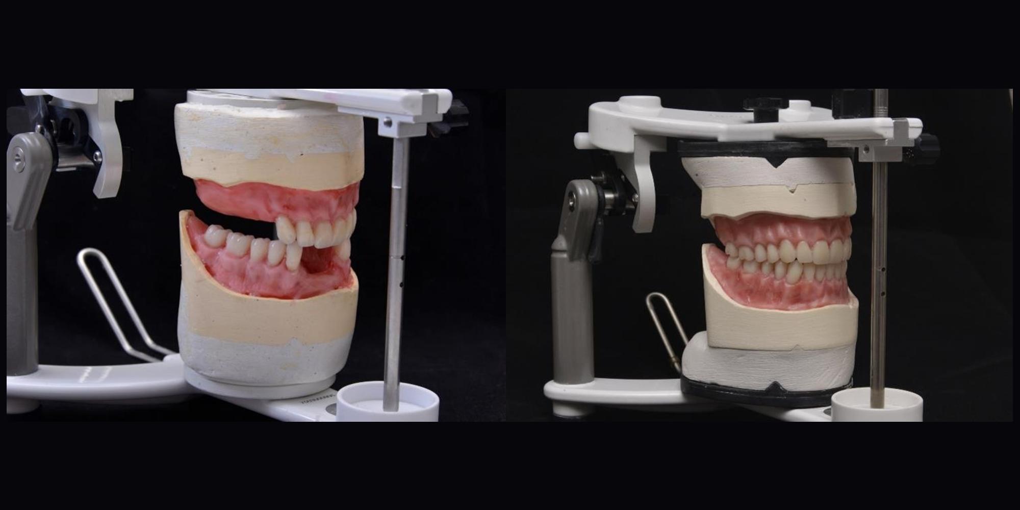 Montagem de Dentes em Prótese Total Dupla pelo Sistema BPS